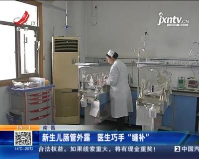 """南昌:新生儿肠管外露 医生巧手""""缝补"""""""