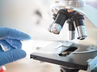 发现传染病、动植物疫病时该如何做?生物安全法4月15日起施行 知识点来了